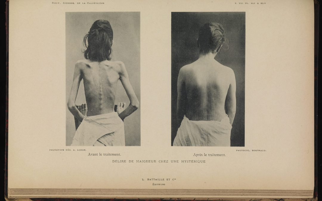 A Thin History Of Eating Disorders